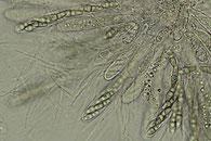 Lophiostoma vagabundum, Asci mit Sporen, Parapysen