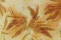 Capronia nigerrima