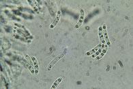 Nitschkia cupularis Sporen, Ascci