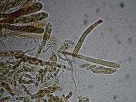 Calloria neglecta-Asci-Sporen