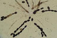 Coniochaeta ligniaria
