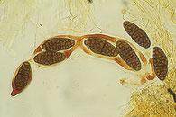 Hysterographium fraxini, Asci, Sporen