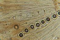 Pseudombrophila bulbifera