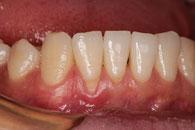 歯ぐきが下がっている状態