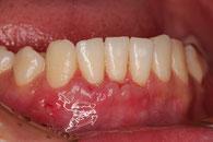 歯ぐきの移植後