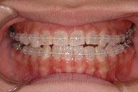神田ふくしま歯科の歯科矯正