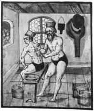 Mittelalterliche Darstellung eines Baders. Die Schröpfköpfe werden angesetzt.