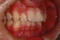 出っ歯を3回で治す