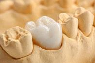 Zahnmodell mit Keramikkrone