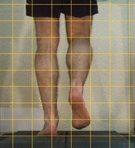 die Laufanalyse beginnt mit dem Barfuß-Laufen, da wird nach evtl. Fußfehlstellungen geschaut