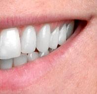 Zahnfarbe nach dem Bleichen
