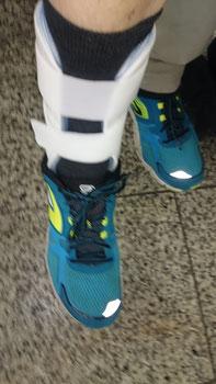 Schiene nach Bänderriss im Knöchel