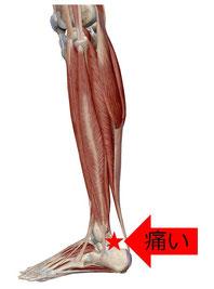 足首の痛み(左脚を外側から見た図)