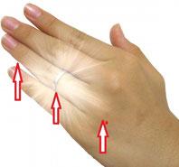 腕のセルフケア