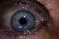 * l'iridologie
