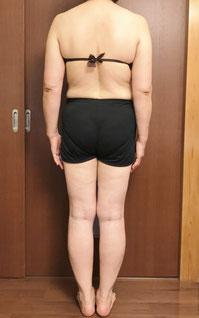 DNAパーソナル痩身 3ヶ月体験後