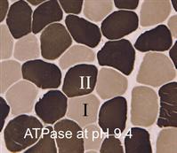 Atapase染色アルカリ側