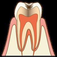 五反田 歯科 たかす歯科クリニックたかす歯科クリニック虫歯