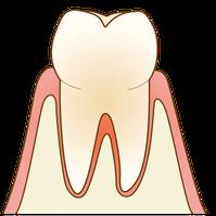 五反田 歯科 たかす歯科クリニック 歯周病