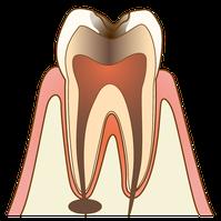 五反田 歯科 たかす歯科クリニック根管治療