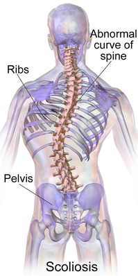 Scoliosis=側弯症