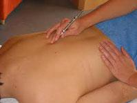 Akupunktur Massage