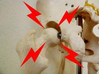 アゴのゆがみと股関節、ソケイ部、恥骨の関係