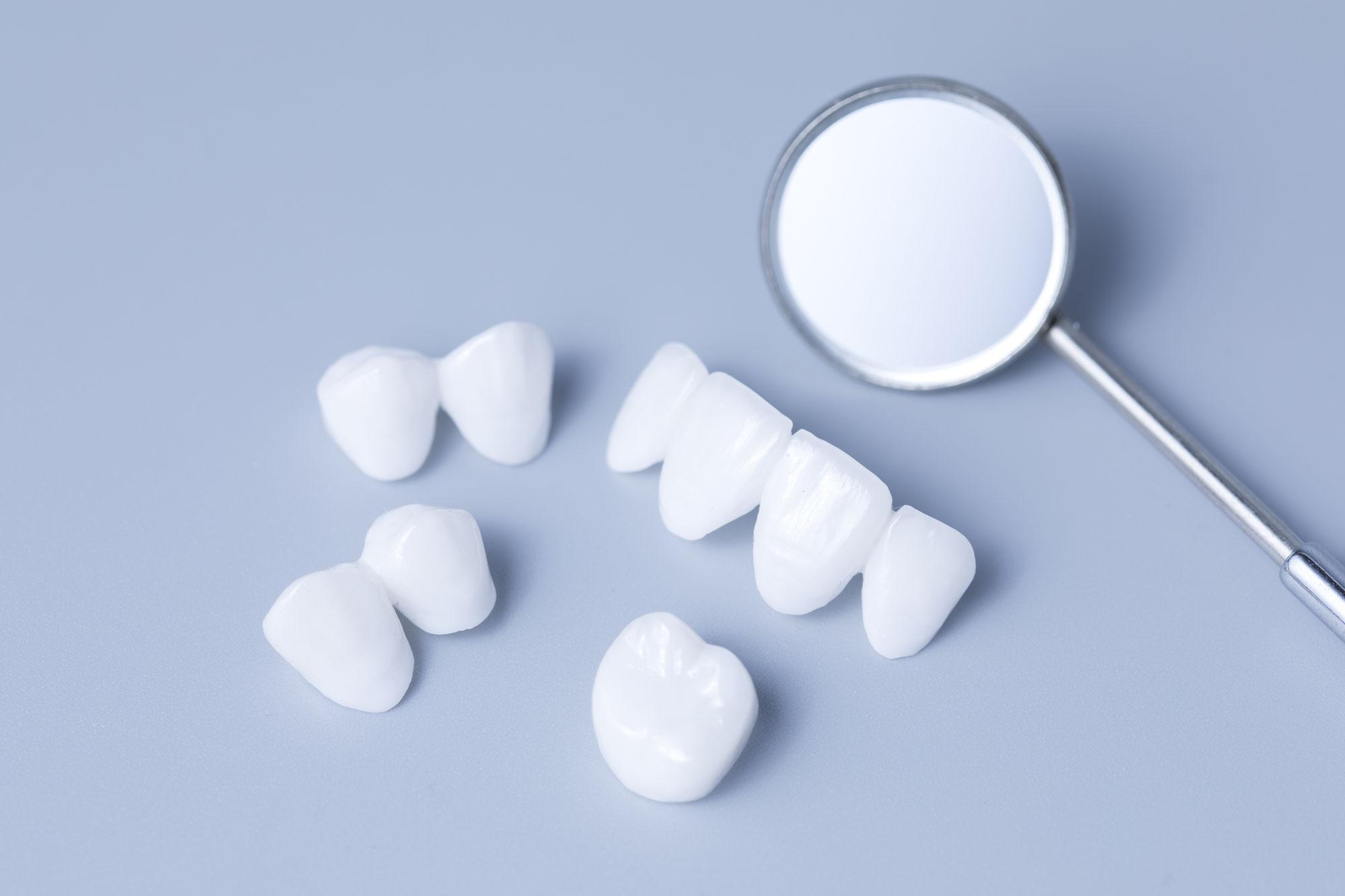 セラミック以外で白い歯に⁉︎