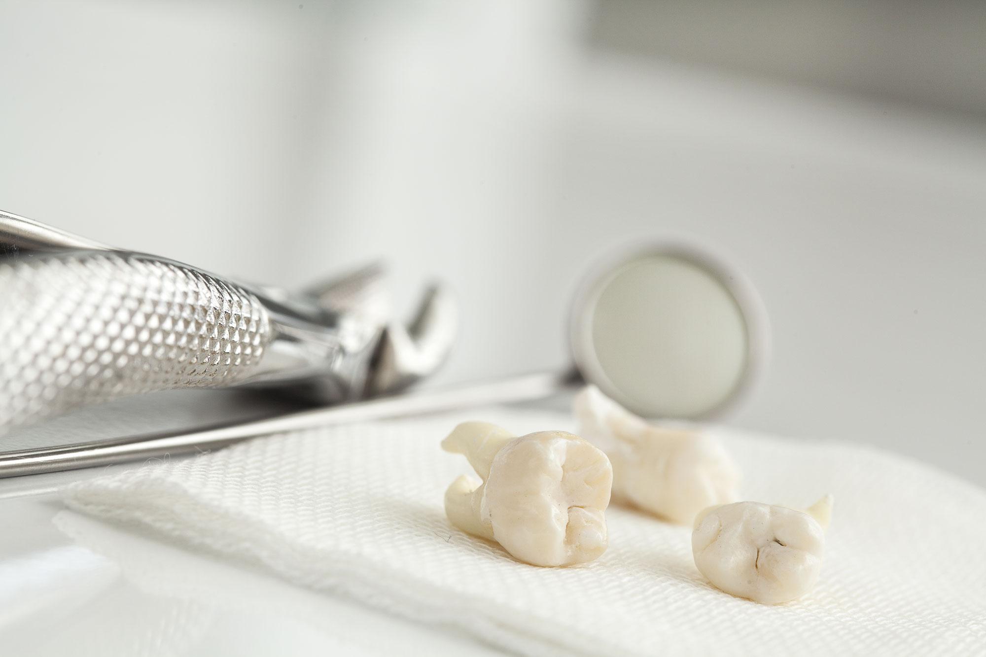 ❺矯正治療に親知らず抜歯は必要か?
