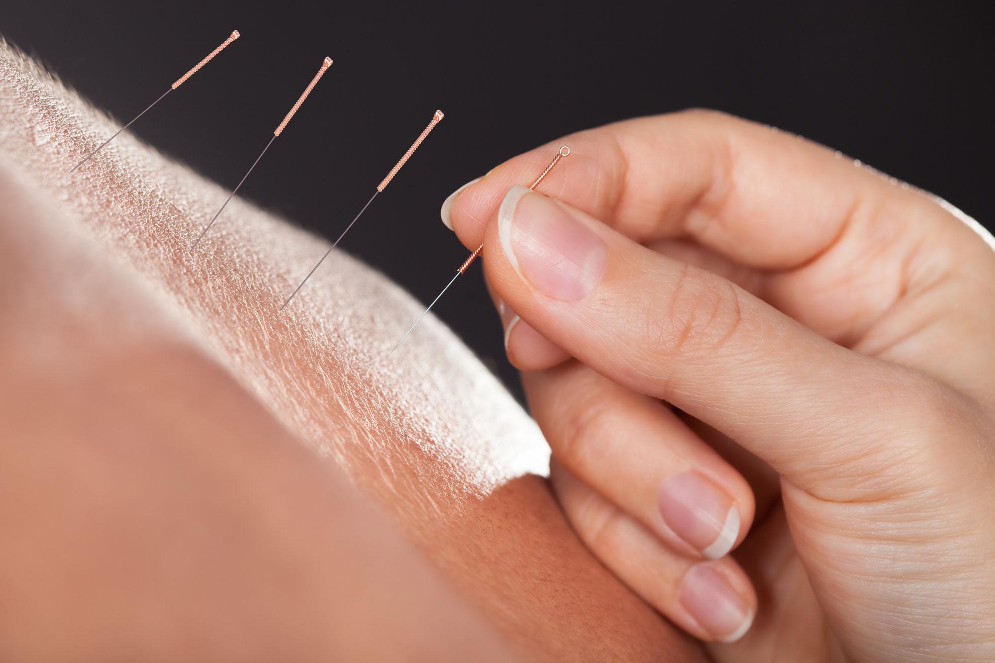 acupunctuur afvallen woerden