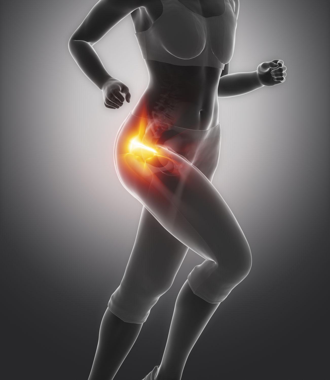 Was ist ein FAIS (Femoro-Acetabuläres-Impingement-Syndrom)?