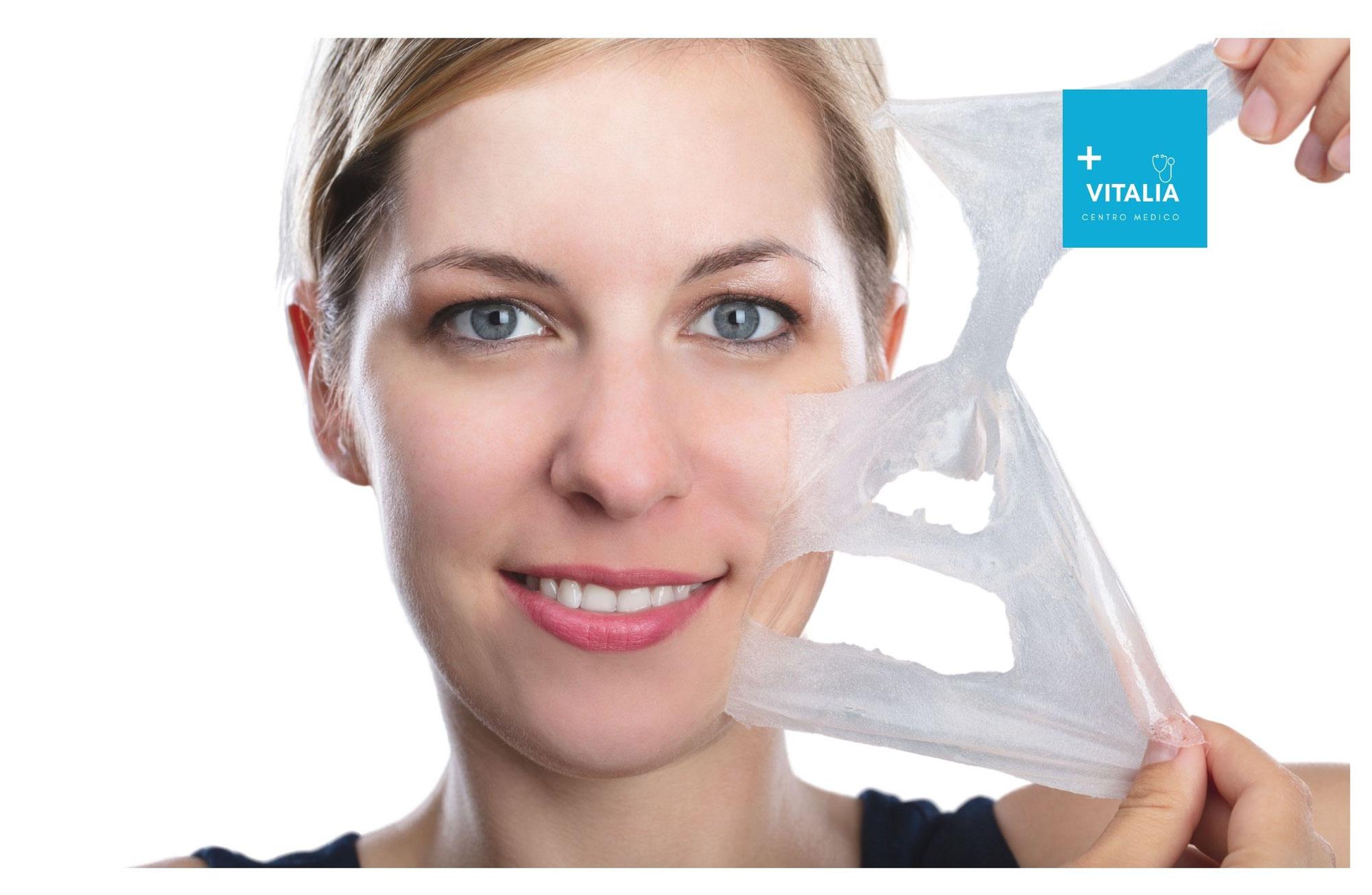 ¿Qué es in Peeling Químico? 7 Beneficios y cuidados.