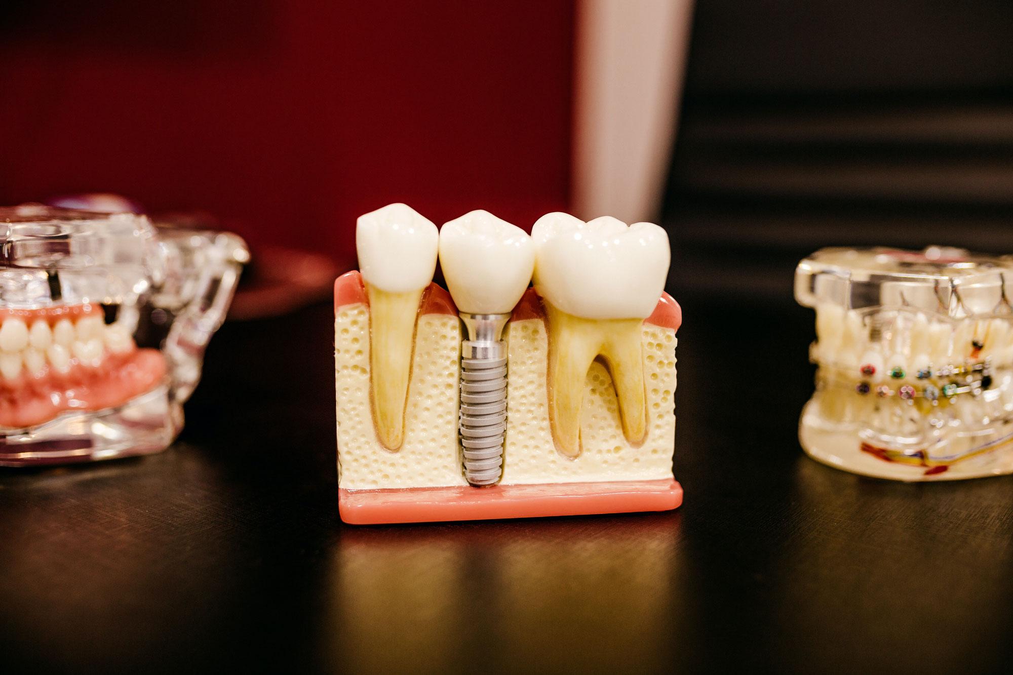 Quanto sono grandi gli impianti dentali?