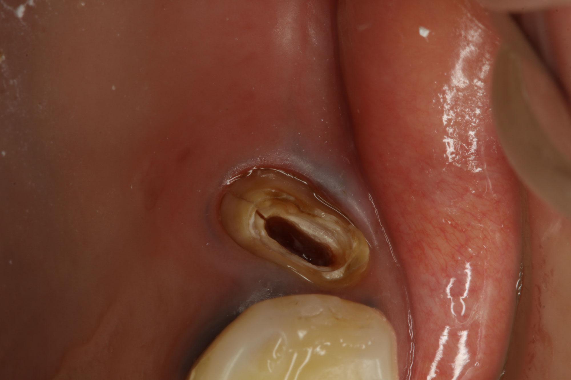 歯のヒビは状態を確認します.