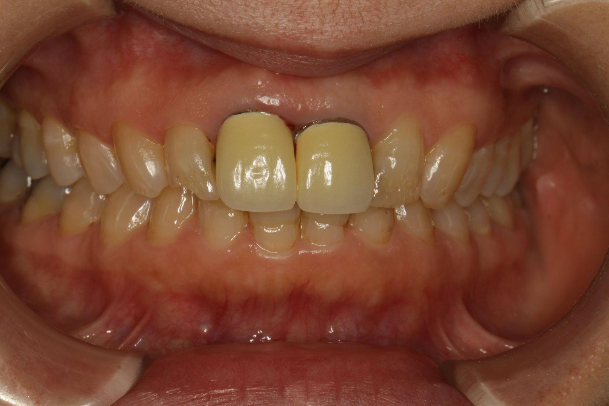 神経のない歯の虫歯は大きくなりやすいってご存知ですか?