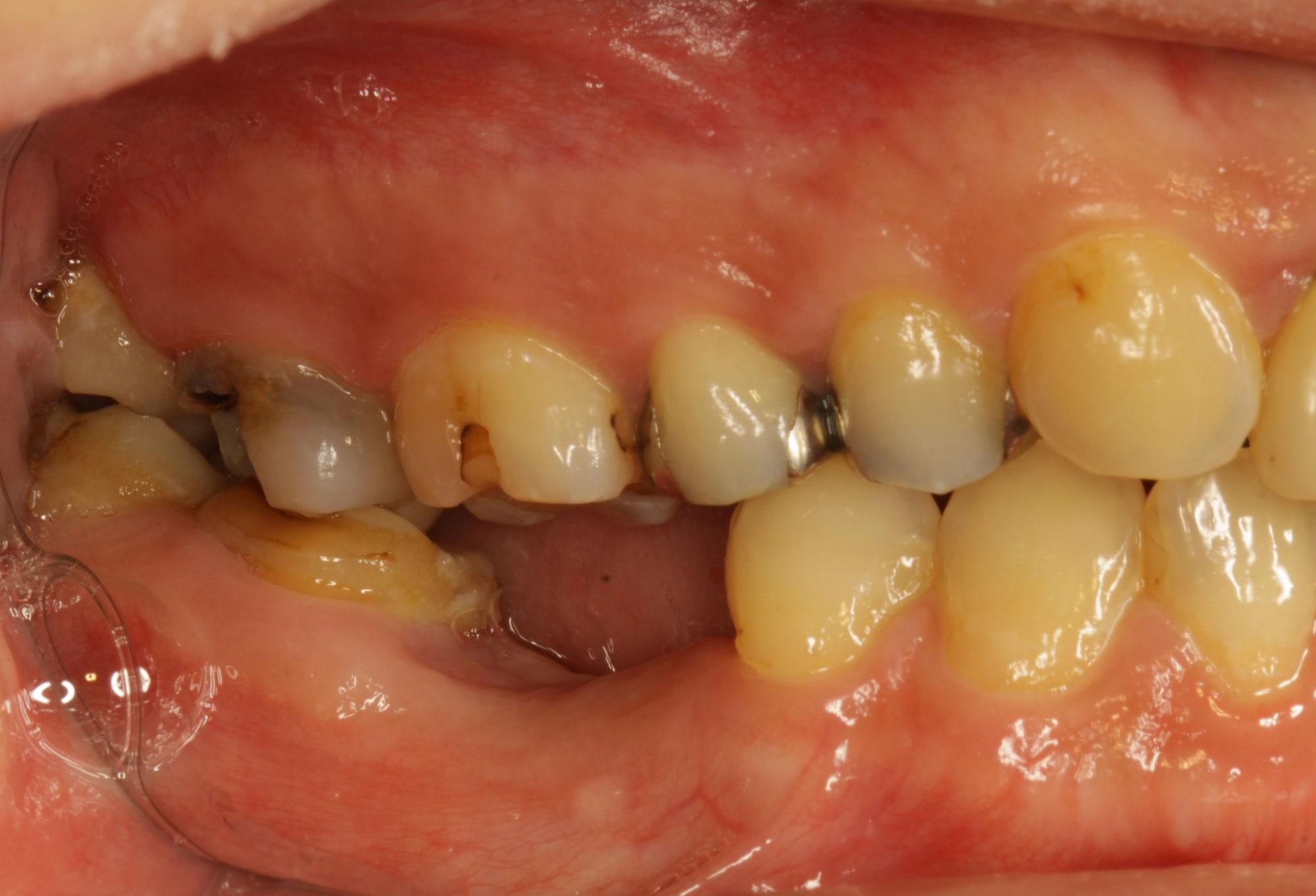 歯を抜いてインプラントを入れる前に