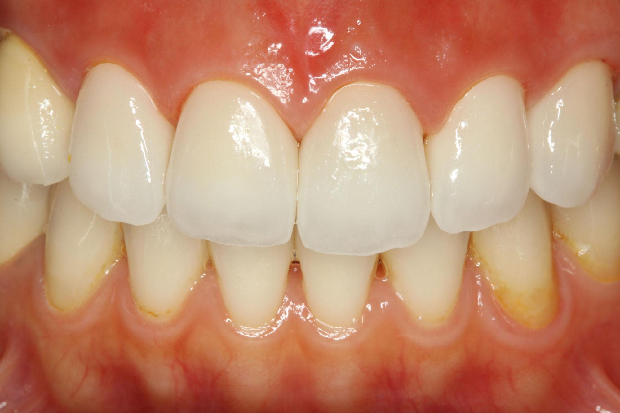 古い差し歯はオールセラミックという素材を使用することでより綺麗に見えるようになります。
