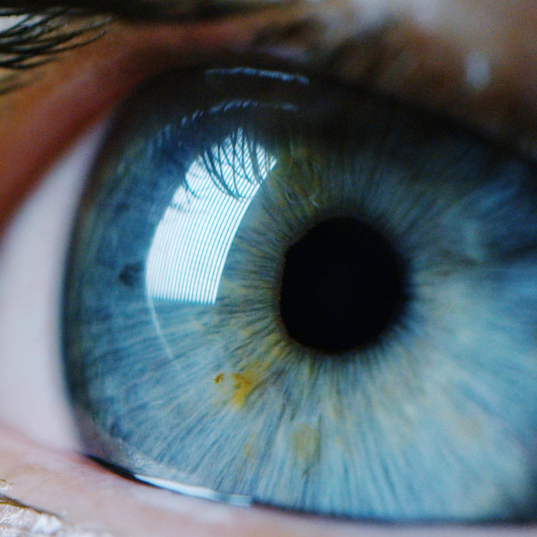 Starre Augen, steifer Nacken