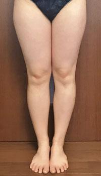 痩身メニュー セル・アタック 左足のみの結果