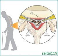 腰部脊柱管の神経圧迫