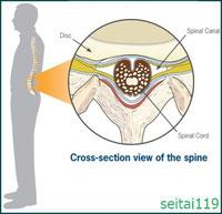 正常な脊柱管