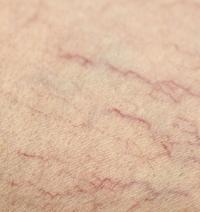 laser vasculaire et électrocoagulation des  télangiectasies par Dr AMOUR