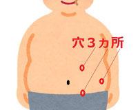 腹腔鏡手術での穴の場所 3ヵ所のイラスト