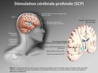 Stimulation Transcrânienne