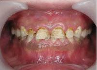 酸蝕症 八戸市くぼた歯科医院 ホワイトニング