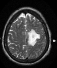 Anaplastic astrocytoma T2
