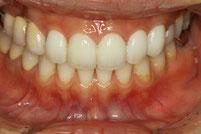 2回目の仮歯