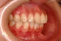 東京の神田ふくしま歯科 出っ歯の治療