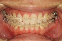 東京の神田ふくしま歯科 歯の形の治療