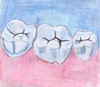 """So sehen die """"Zahnfissuren"""" aus © Daniella R."""
